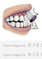 الطريقة الصحيحة لتنظيف الاسنان