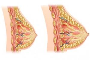 وصفة مجربة و فعالة في شد ترهلات الصدر