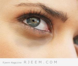 5طرق طبيعية للتخلص  من الهالات السوداء تحت العينين