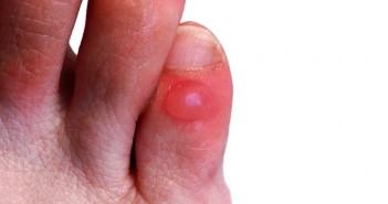 علاج فقاعات القدم  بشكل طبيعي