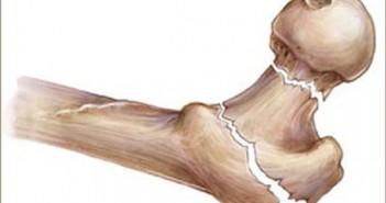هشاشة العظام اسبابها وعلاجها