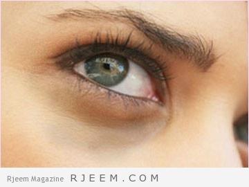 الهالات السوداء أكثر من 6 اسباب لتظهر تحت العينين وطرق العلاج