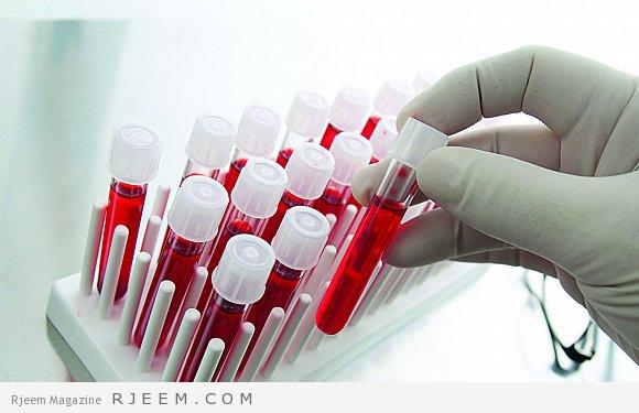 فقر الدم 6 اسباب هامة وطرق علاج فقر الدم