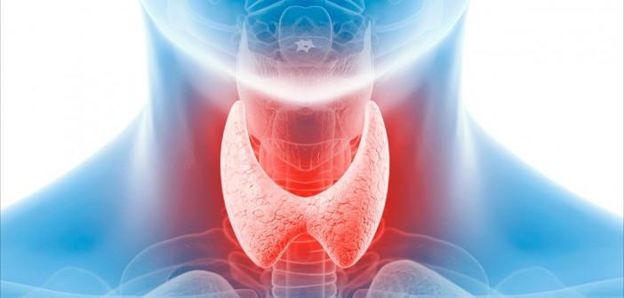 قصورة الغدة الدرقية - اسباب وعلاج خمول الغدة الدرقية