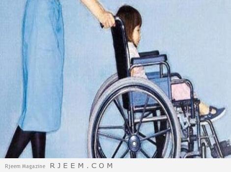 شلل الاطفال - اسباب وعلاج التهاب سنجابية النخاع