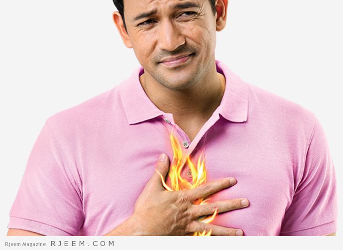 علاجات منزلية لحرقة المعدة