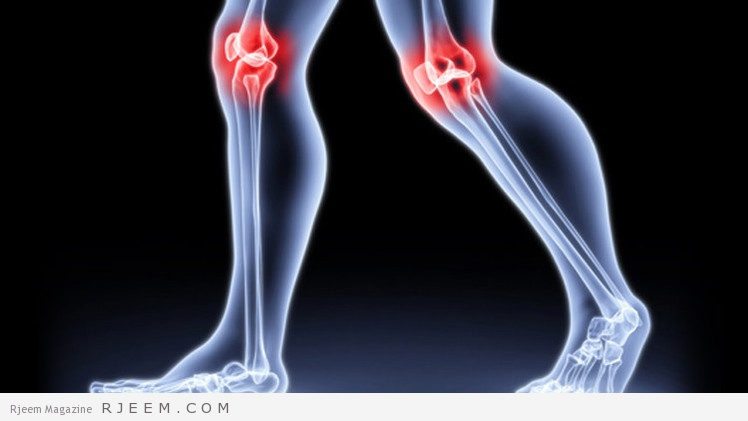 10 علاجات بالاعشاب لالتهاب المفاصل
