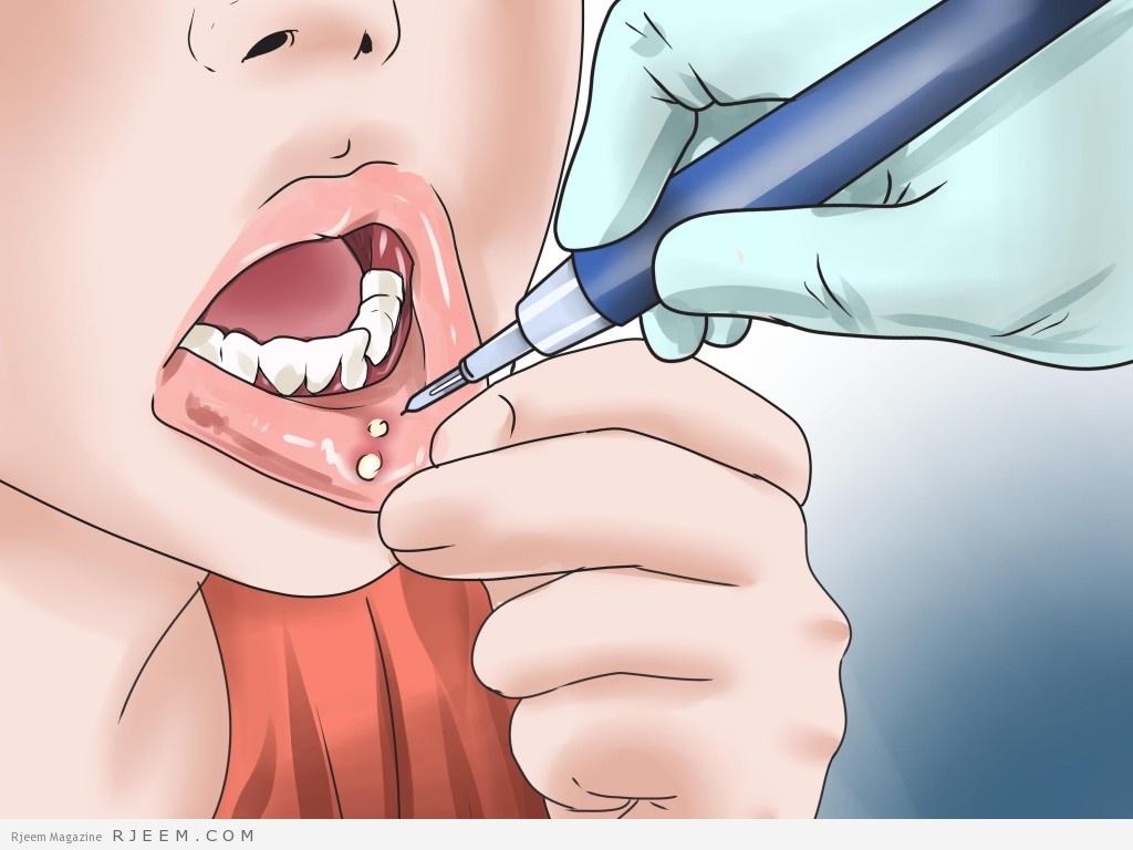 16 علاج منزلي لتقرحات الفم