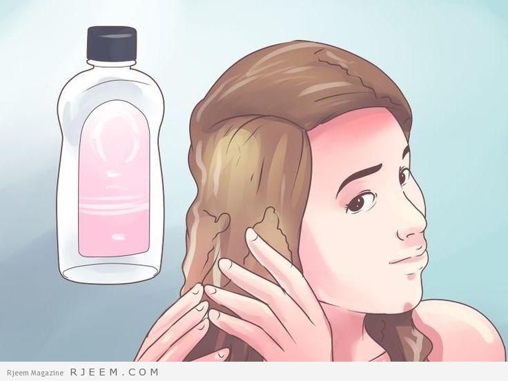 10 علاجات منزلية لقشرة الرأس