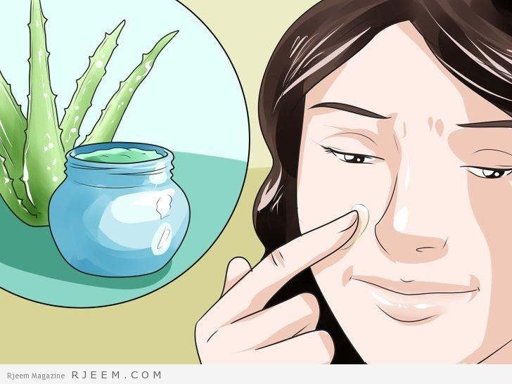 12 وصفة طبيعية لعلاج حساسية الوجه