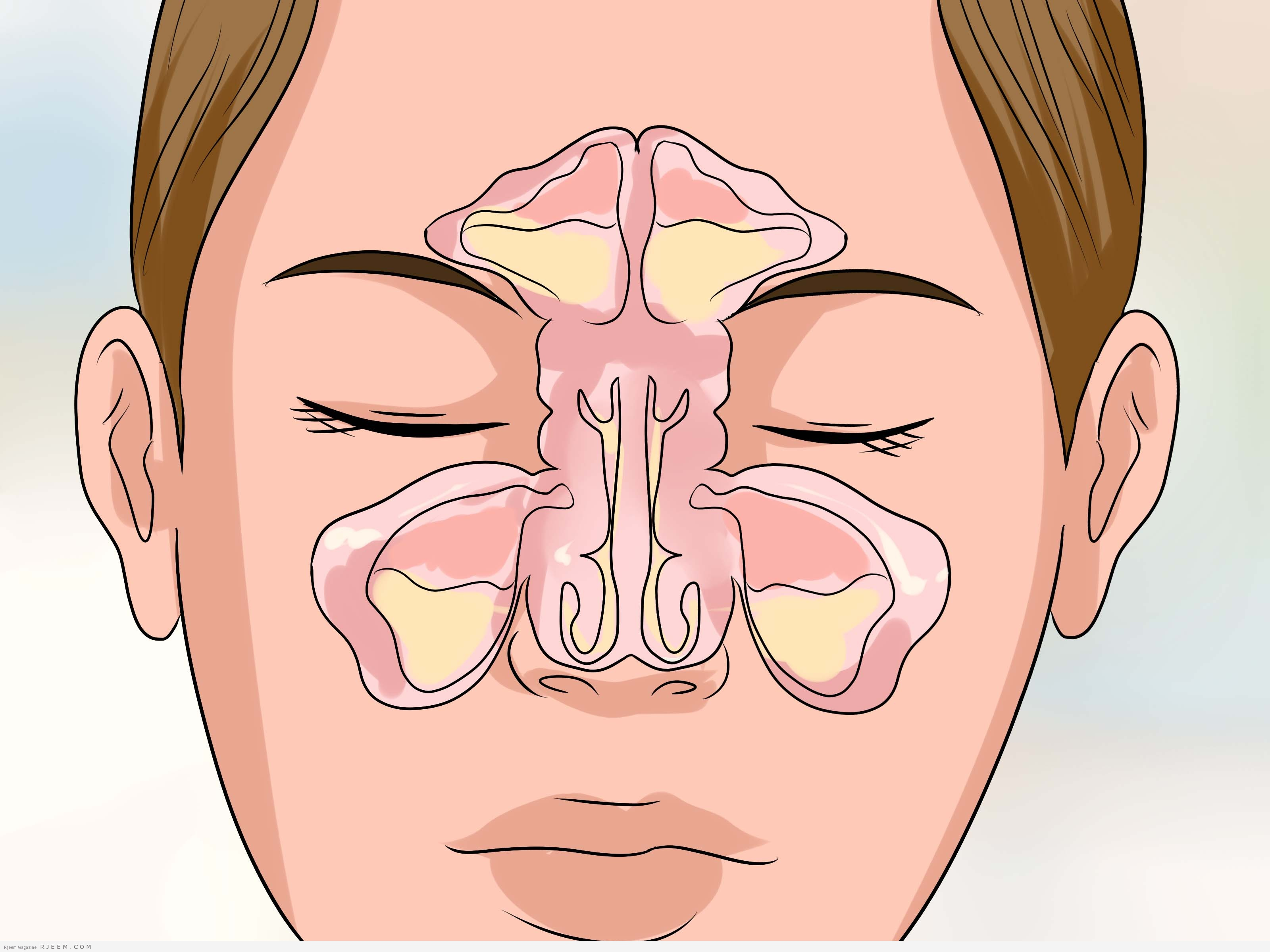 5 من اعراض التهاب الجيوب الانفية
