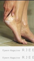 علاج تشقق القدمين في البيت