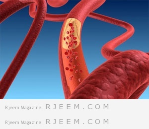 Photo of خفض مستويات الكوليستيرول