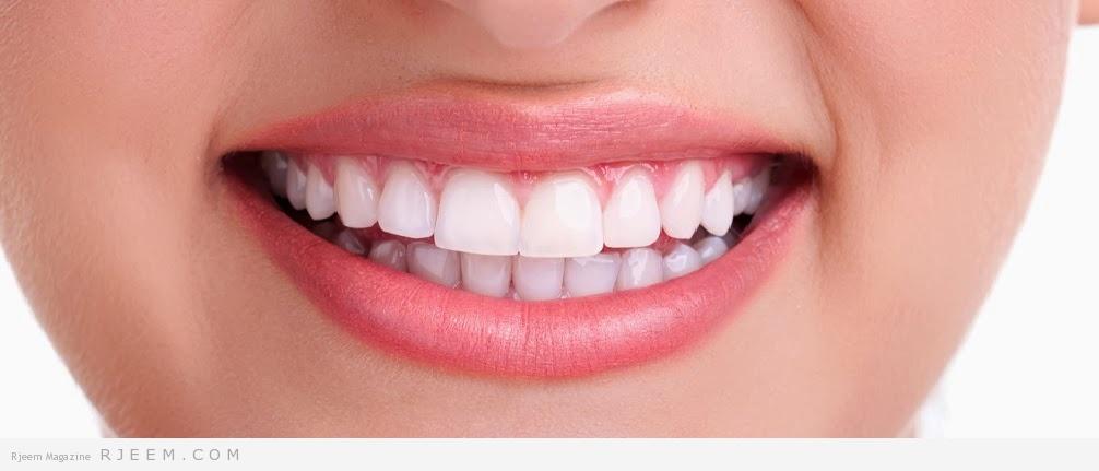 Photo of 5 طرق سهله للحصول على ابتسامه رائعة