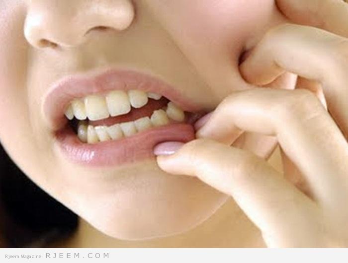 Photo of 7  علاجات طبيعية للحد من وجع الاسنان
