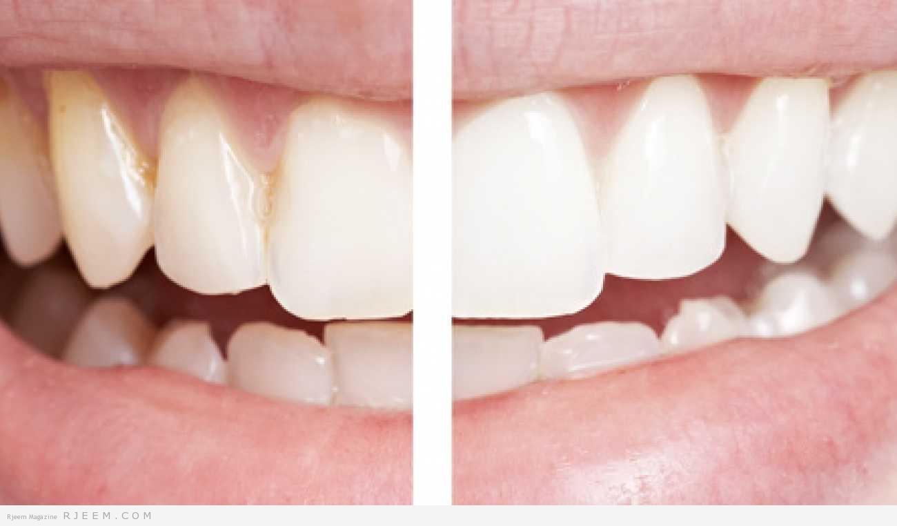 Photo of 3 طرق مجربة  لتبييض الاسنان طبيعيا