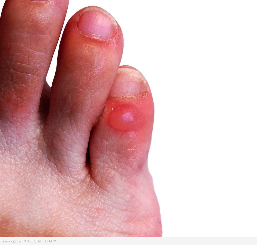 Photo of علاج فقاعات القدم  بشكل طبيعي
