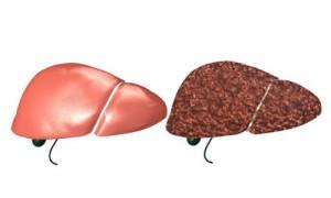 التهاب الكبد الفيروسي
