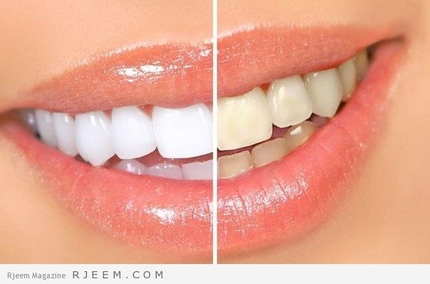 Photo of تبييض الاسنان بطريقة طبيعية