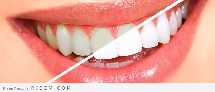 Photo of اقوى 5 خلطات لتبييض الاسنان