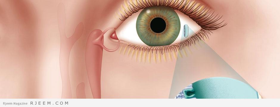 Photo of العيون الدامعة – اسباب وطرق علاج العيون الدامعة