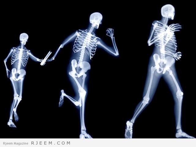 Photo of هشاشة العظام – اسباب وعلاج الاصابة بهشاشة العظام