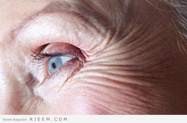 Photo of علاج الخطوط تحت العين – كيفية التخلص من تجاعيد حول العين