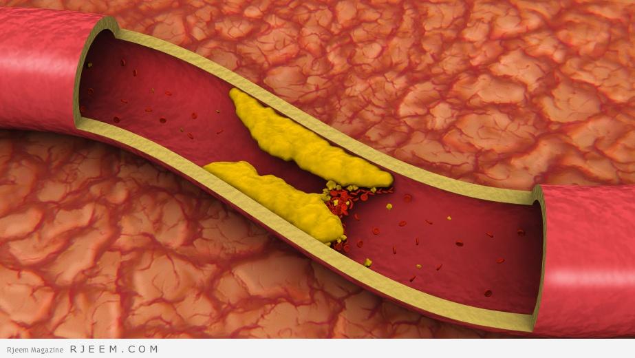Photo of علاج الكولسترول – كيف تقلل نسبة الكولسترول في الدم