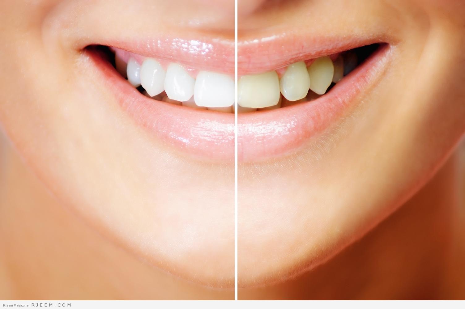 Photo of تبييض الاسنان-مقال مميز عن طرق تبييض الاسنان و العناية بها