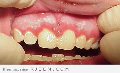 Photo of التهاب اللثه-اسباب التهاب اللثه و طرق علاجها منزليا
