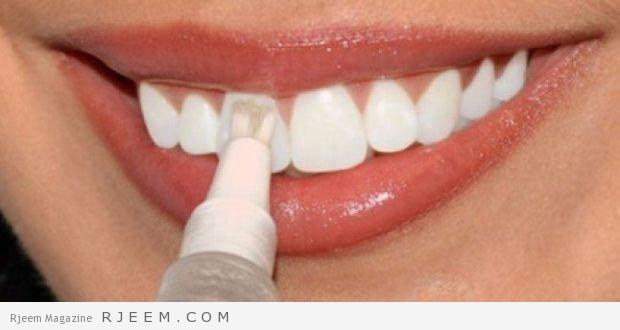 Photo of تبييض الاسنان-حافظ على اسنانك بتتبع هذه النصائح طبيعية و مجربة