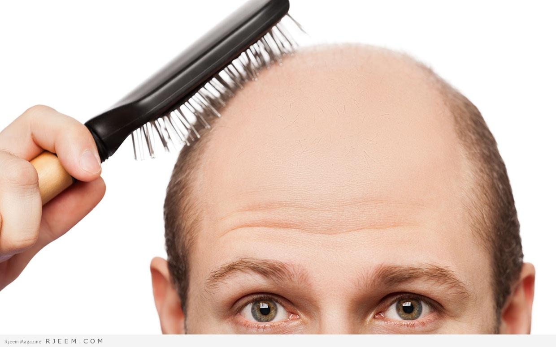 Photo of الصلع – اسباب وعلاج مشكلة الصلع عند الرجال