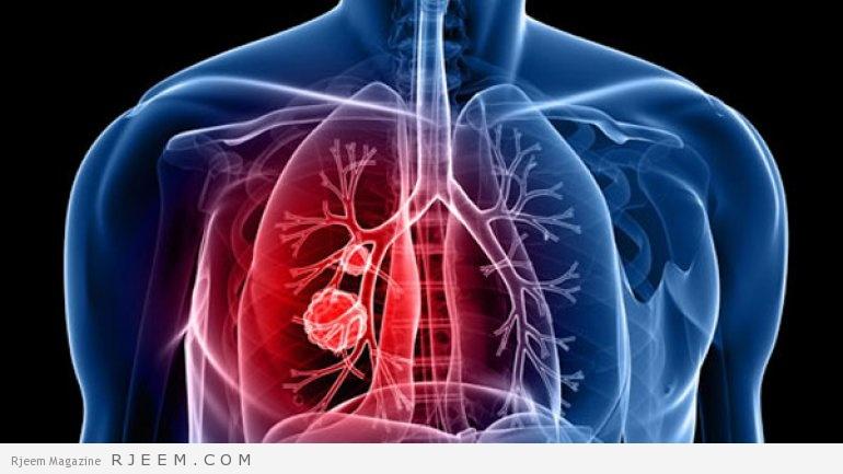 Photo of امراض الرئة – كيفية الوقاية من امراض الجهاز التنفسي