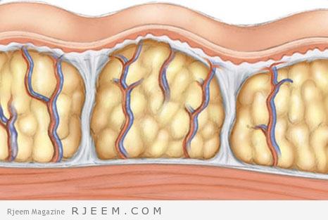 الخطوط البيضاء - وصفات علاجية منزلية للسيلوليت