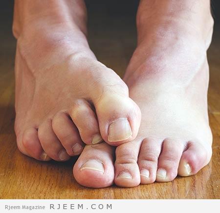 Photo of فطريات اصابع القدم – اسباب فطريات القدم و علاجها