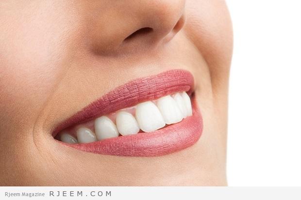Photo of تبييض الاسنان – نصائح لابتسامة جميلة