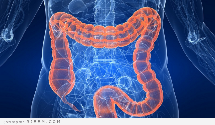 Photo of التهاب القولون – اسباب وعلاج التهاب القولون