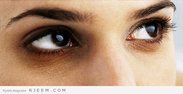 علاج السواد تحت العين - اهم النصائح للتخلص من الهالات السوداء