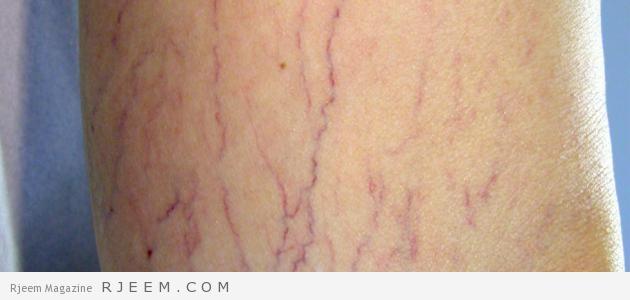 Photo of دوالي الساق – علاجات منزلية لدوالي الساقين