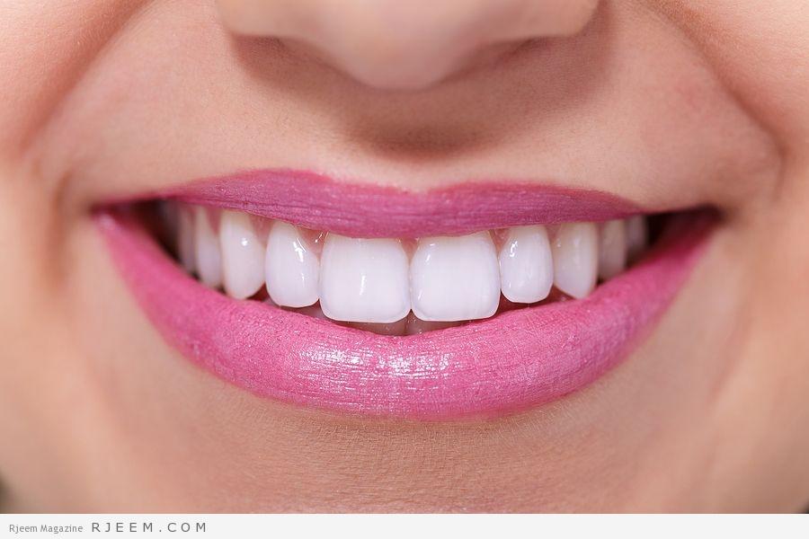 Photo of خلطات تبييض الاسنان في 5 دقائق