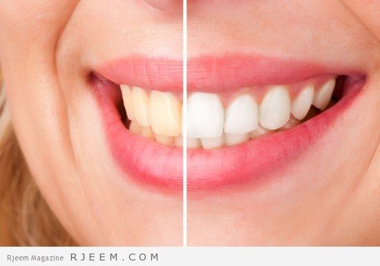 Photo of 12 طريقة لتبييض الاسنان في 2 دقيقة