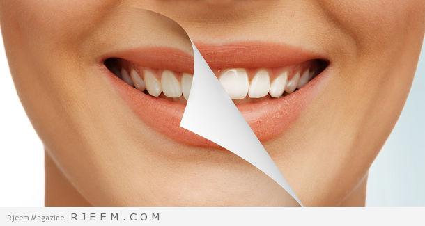 Photo of اقوى 4 خلطات تبييض الاسنان