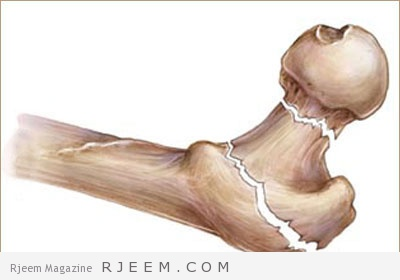 Photo of علاج هشاشة العظام