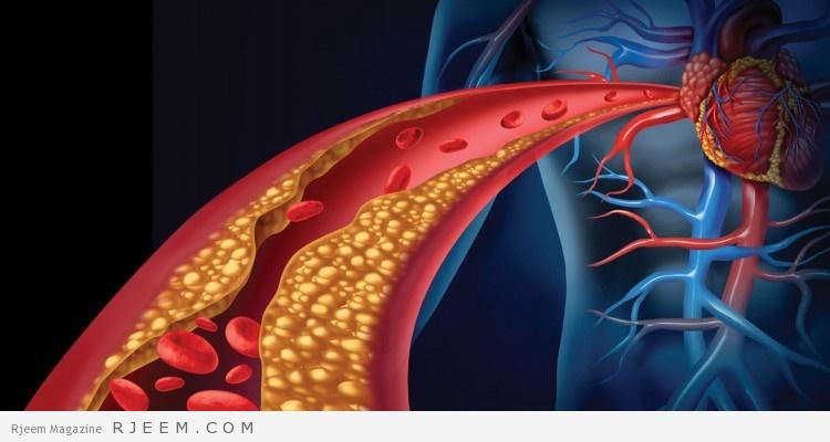Photo of 4 نصائح لتخفيض الكولسترول