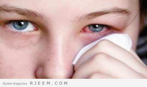 Photo of اسباب و اعراض ارتفاع ضغط العين