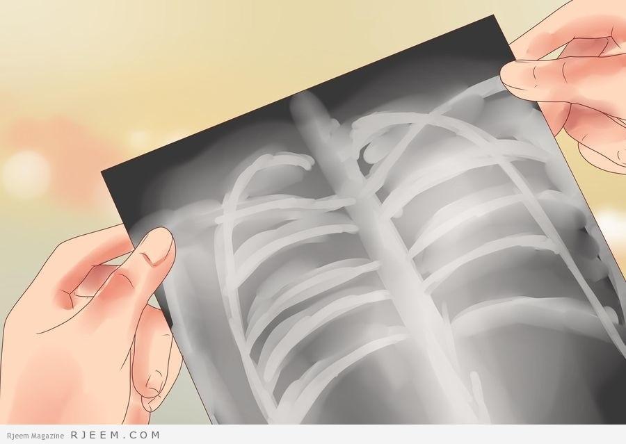 Photo of بعض امراض الرئة و طرق الوقاية منها