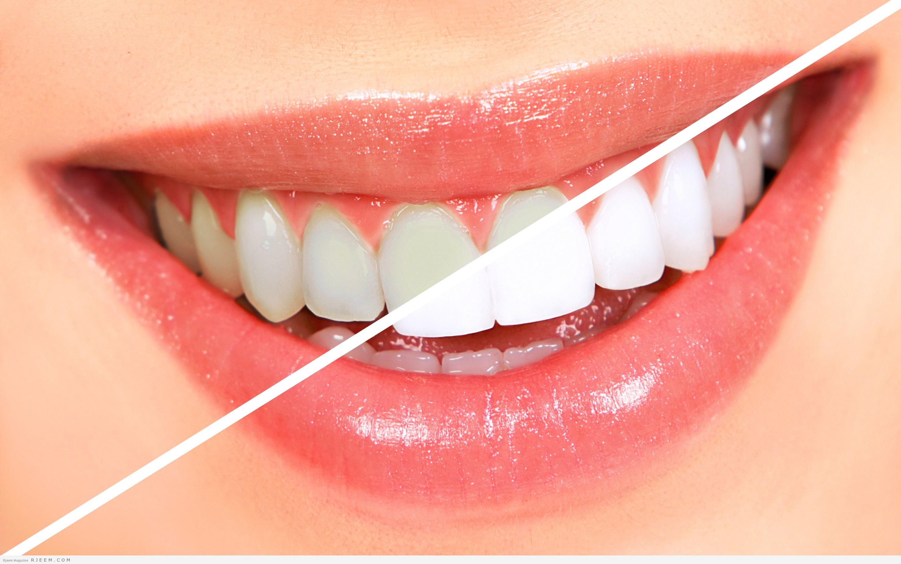 Photo of 10 طرق طبيعية لازالة اصفرار الاسنان
