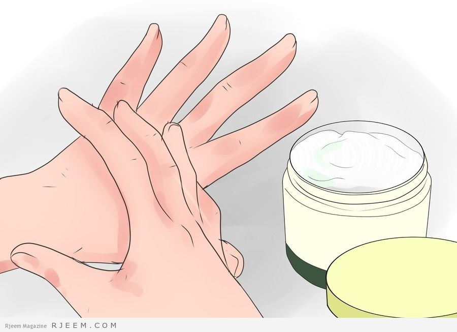 Photo of وصفات علاج تشققات الجلد