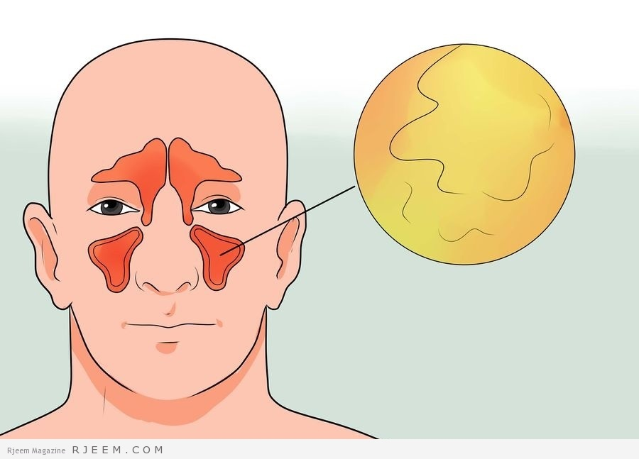 Photo of انواع إلتهاب الجيوب الأنفية