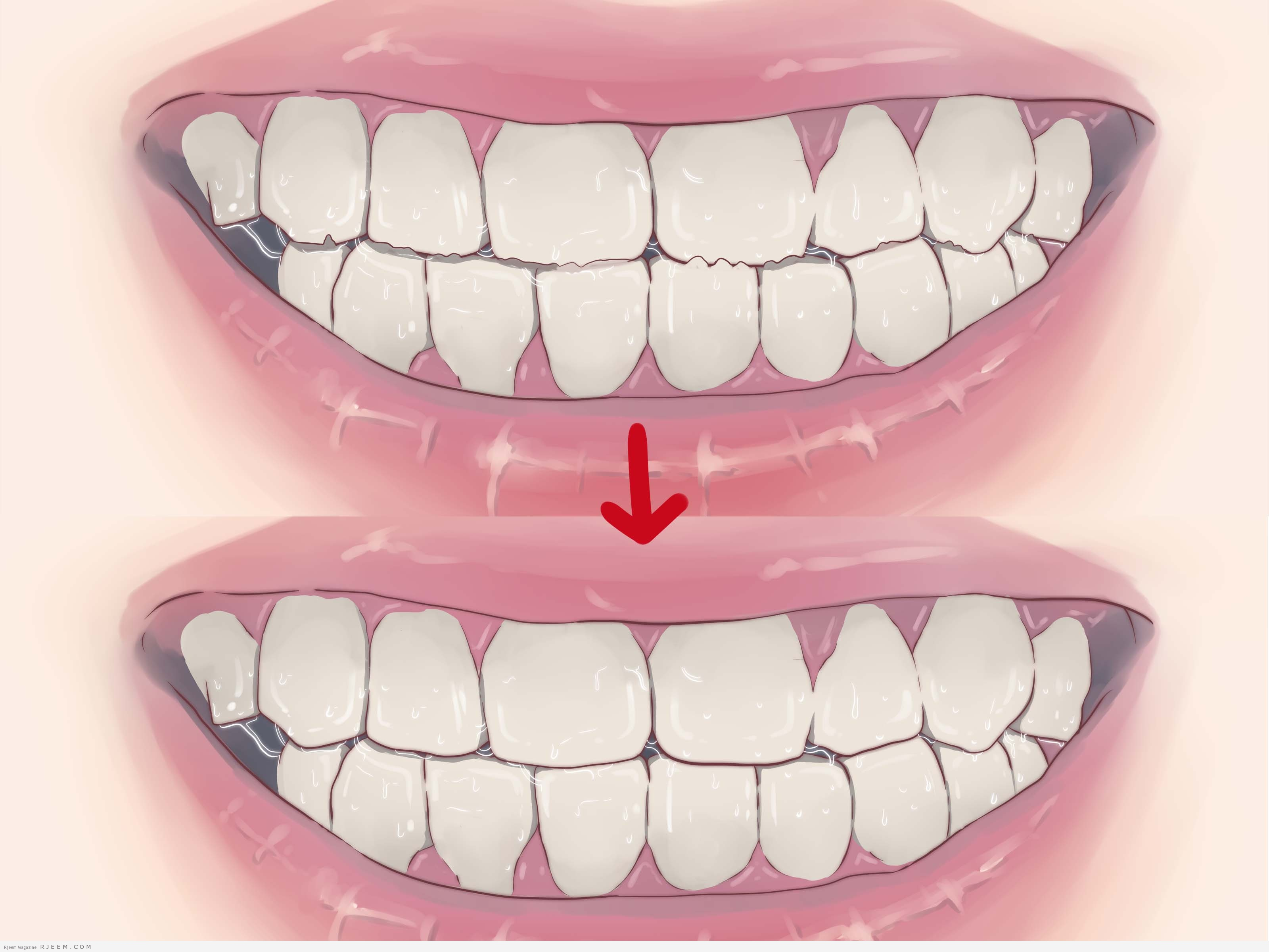 Photo of 8 اغذية تسبب تلف الأسنان